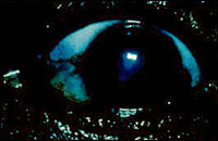 Cataract Image 3